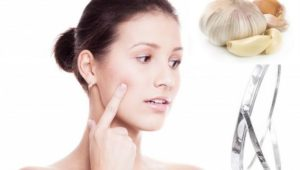 Last minute tips to get rid of pimples before your wedding day